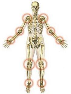 csípőízület fiatal korban ízületi gyulladások, mint kezelni