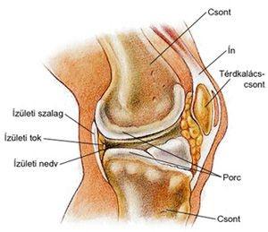 ízületi gyulladás térdízület artrózisával 3 fokkal