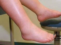ízületi problémák duzzadt lábak a középső ujj ízülete meghajolva fáj