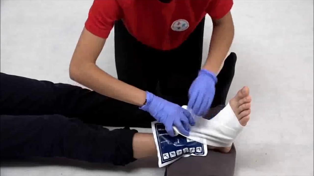 ízületi sérülés tenyérkezelés